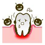 歯周病の症状と予防方法について おすすめの予防方法を紹介します