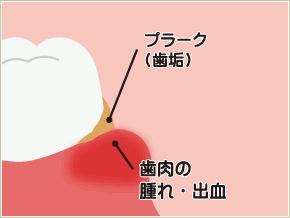 歯茎が赤く腫れる